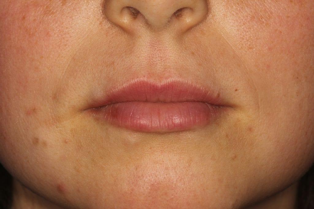 After image of lip filler