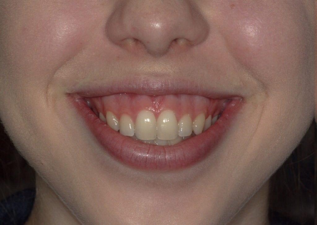 before image of lip filler